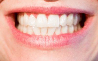 Pansement dentaire : des progrès sont-ils encore possible ?