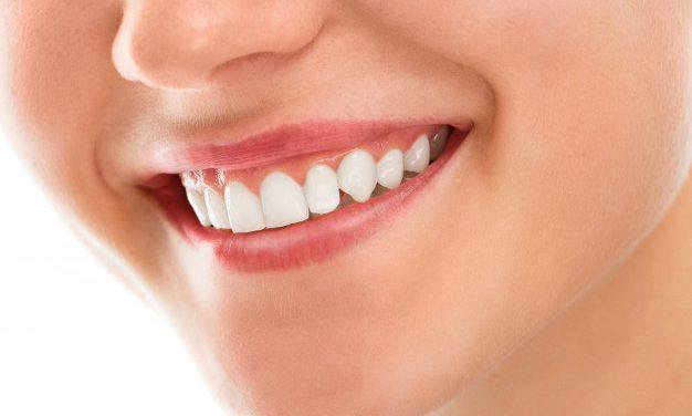 L'orthodontie, un sourire pour toute une vie