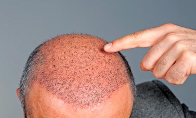 Implant capillaire : la fin des complexes