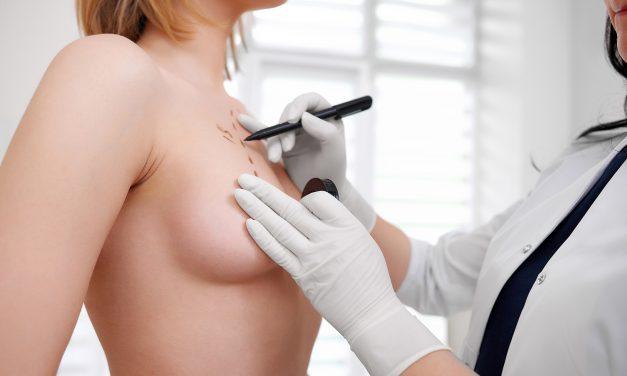 Qu'est-ce que l'augmentation mammaire composite ?